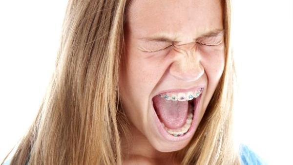 Как привыкнуть к брекетам: рекомендации для периода адаптации, терпеть ли боль