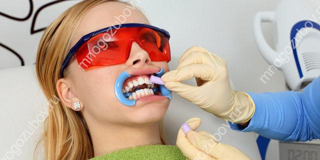 О шлифовке зубов в мельчайших подробностях: какие используются инструменты и материалы, этапы проведения, подготовка, меры предосторожности