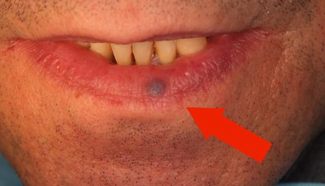 Синие пятна на губах причины. Темное пятно на губе: чем его убрать