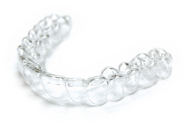 Брекеты или капы: что лучше для выравнивания зубов, когда можно ставить вместо элайнеров и чем они отличаются