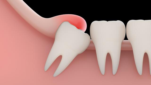 Капюшон зуба мудрости: иссечение и удаление при воспалении, надрез и как удаляют, если воспалилась десна