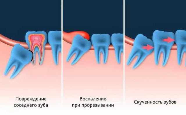 Удаление ретинированного зуба мудрости, или как похудеть на 3 кг за 2 недели