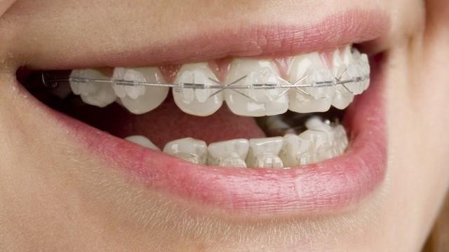 Лигатурные брекеты: чем они лучше безлигатурных, что такое лигатуры, преимущества и недостатки металлических систем перед керамическими