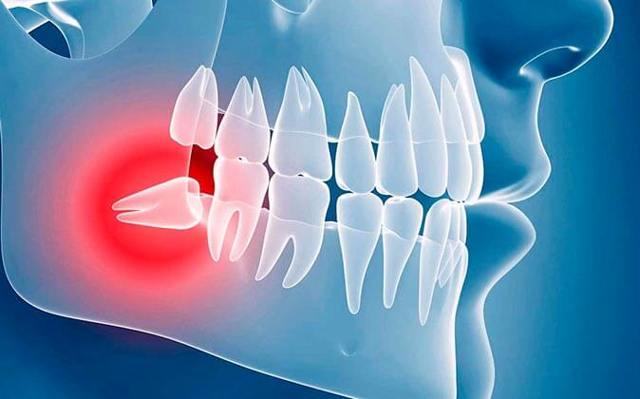 Болит зуб мудрости: первая помощь и рекомендации по лечению зубов