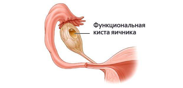 Удаление кисты яичников — виды хирургических операций и рекомендации по восстановлению здоровья