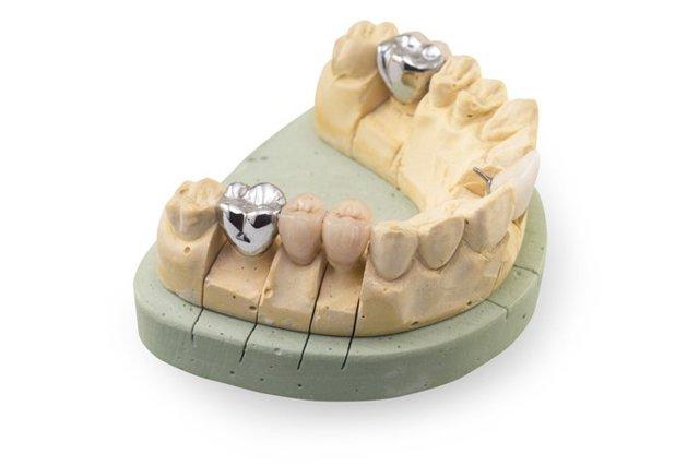 Как ухаживать за металлокерамическими коронками? Уход за зубами из металлокерамики, основные правила и советы специалистов.