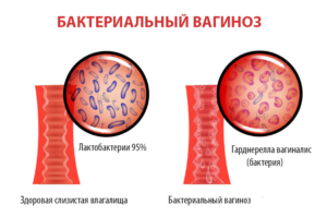 Выделения перед родами (кровянистые, белые, слизистые, розовые, жёлтые) - какие должны быть