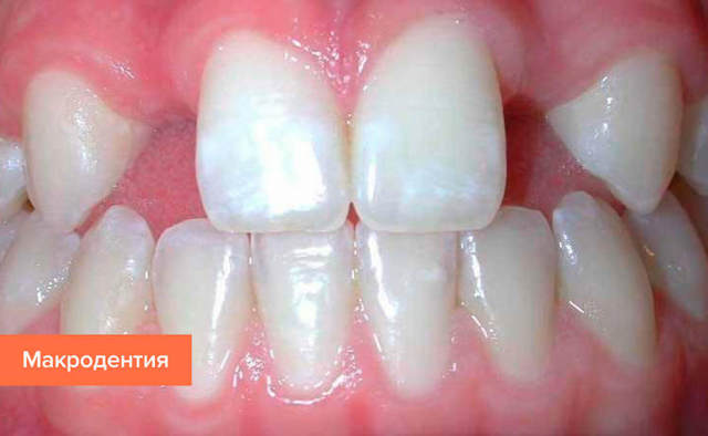 Вырвать зуб по соннику: к чему может присниться удаление без крови, мнения разных толкователей