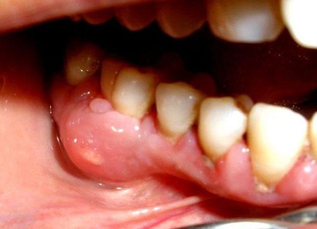Гной после удаления зуба: что делать, если гноится десна, как лечить воспаление