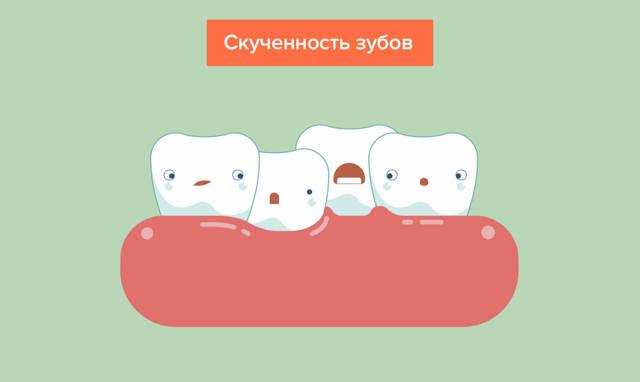 Прорезывание зубов у детей с фото: названия единиц и очередность, симптомы, особенности роста
