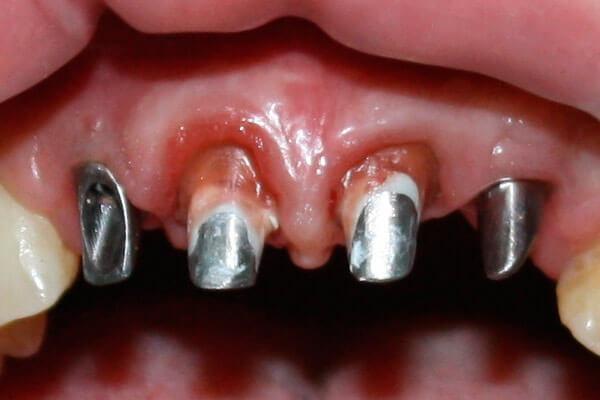 Установка зубных имплантов: как и сколько по времени их ставят, этапы имплантации зубов