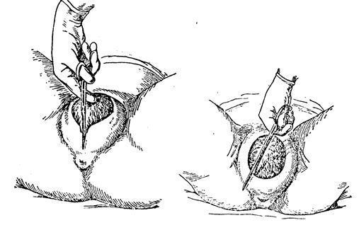 Разрывы при родах: внутренние швы после, фото, болят половые губы, швы на шейке матки, разрыв промежности