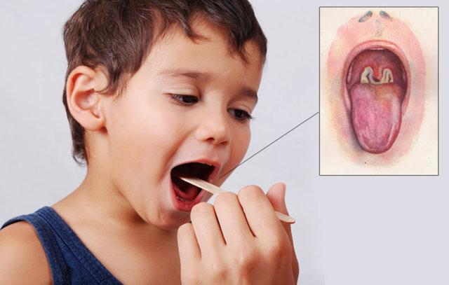 Грибок в горле - симптомы и лечение у ребенка: 16 препаратов для борьбы с молочницей, как и чем обработать при кандидозе горло у детей