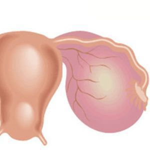 Киста яичника: причины образования, симптомы и признаки, лечение народными средствами в домашних условиях