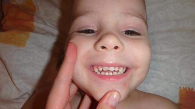 У ребенка шатается молочный зуб, что делать: потемнел или откололся после удара