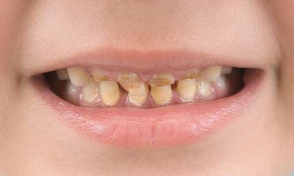 Желтый налёт на зубах у ребёнка: причины появления пятен и способы лечения