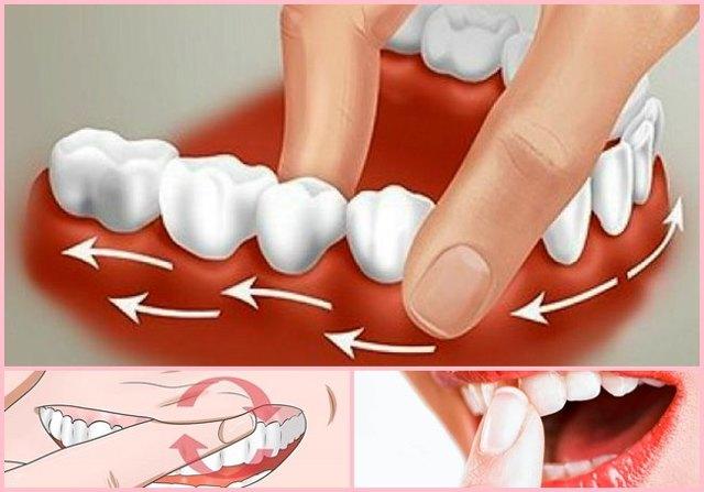 Оголение шейки зуба: причины, лечение, что делать если оголяются корни зубов у десен