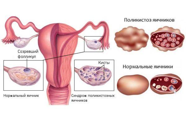 Стимуляция овуляции при поликистозе яичников: какие используют препараты после лапароскопии для эко и насколько они эффективны