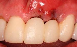 После имплантации зуба: отек, осложнения, боль, температура, онемение губы и антибиотики после установки импланта