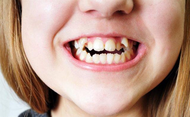 Клыки у детей: этапы прорезывания, советы по уходу и распространенные виды болезней