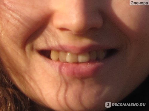 На сколько хватает отбеливания зубов: как долго держится эффект и сколько длится процедура