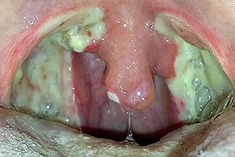 Белый налет на миндалинах (гландах) без температуры, с температурой и болью в горле у взрослого: причины, лечение