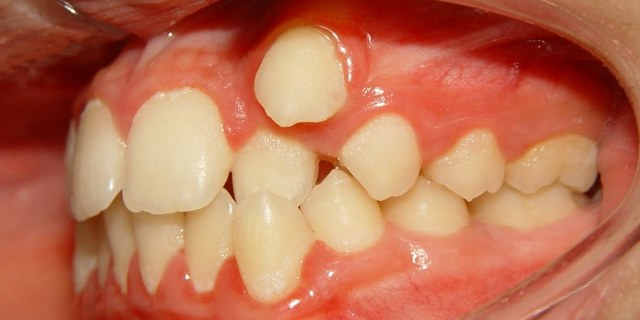 У ребенка зуб растет вторым рядом — причины и что делать.
