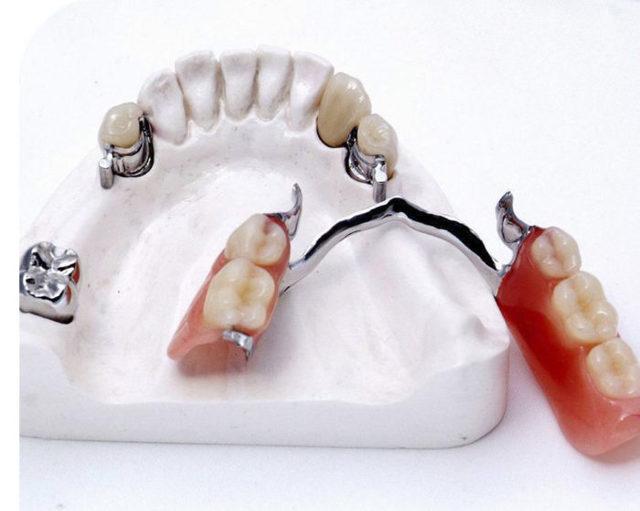 Этапы изготовления бюгельного протеза – лабораторные и клинические этапы изготовления бюгельного протеза на кламмерах, на аттачменах и с замковой фиксацией