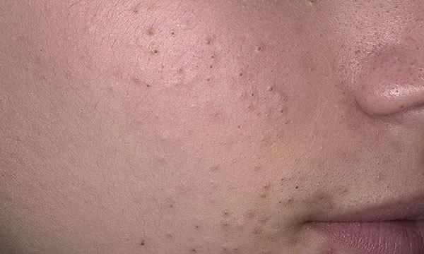 Прыщи на лице - какие анализы сдать, к какому врачу обратиться