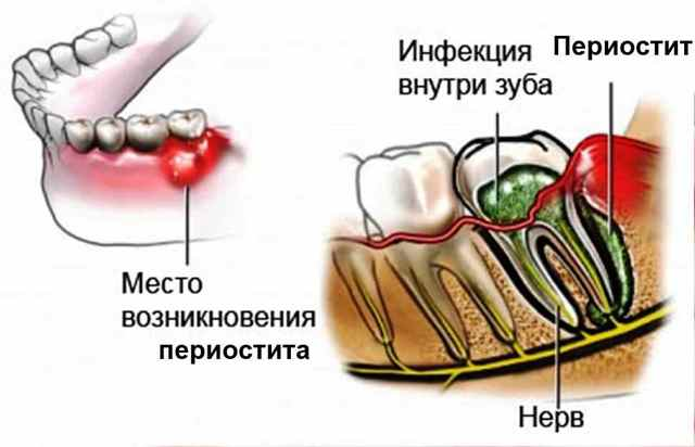 Чем полоскать флюс на десне: лечение воспаления полости рта в домашних условиях