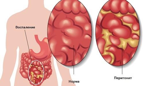Пупочная грыжа после родов — симптомы, признаки, лечение. Грыжа после родов — что делать, упражнения