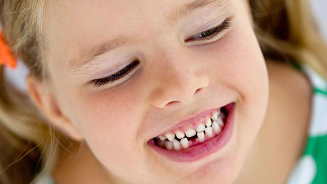 Как растут зубы у детей в 5 лет, какие проблемы бывают?