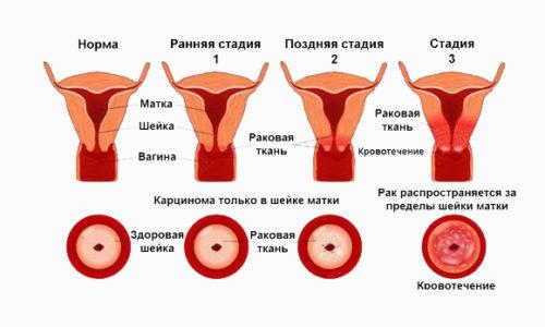Рак матки рак шейки матки симптомы и признаки на разных стадиях