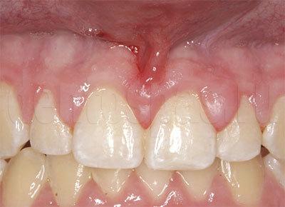 Гиперплазия десен (разрослась десна во рту). Причины и методы лечения и мнение эксперта