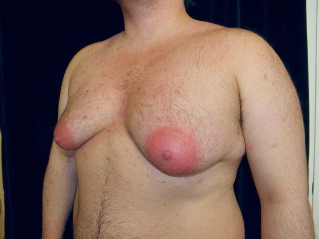 Кровь из соска: грудных желез, причины, почему идет, кровоточат, при надавливании, что делать