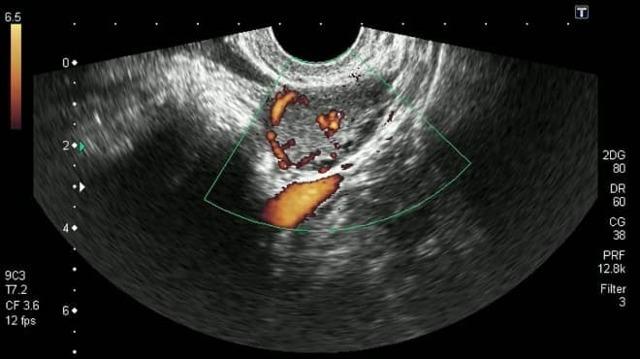 Киста желтого тела при беременности: на ранних сроках, симптомы, выделения, размеры, разрыв