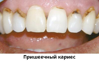 Болит передний верхний зуб: причины, сопутствующие симптомы, лечение