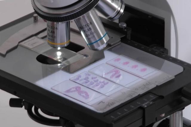 Двухкамерная киста яичника (левого или правого): основные симптомы, диагностика и методы лечения