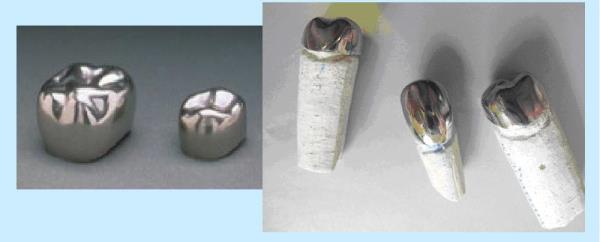 Металлические коронкина зубы — зубные изделия из металла с белым напылением и облицовкой