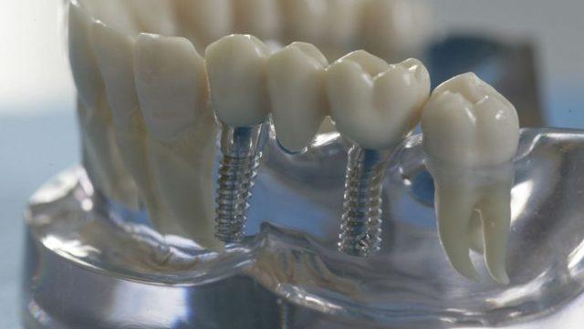 Какие зубы лучше вставить если нет корня или при полной адентии: виды и особенности