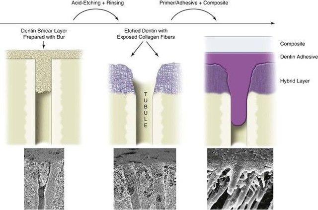Адгезивные системы в детской терапевтической стоматологии