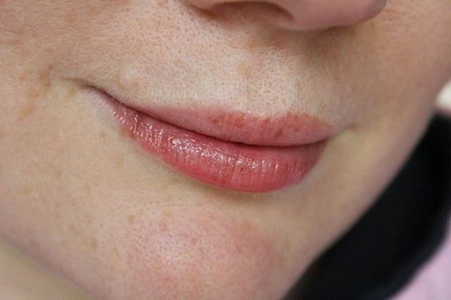 Родинка на губе: значение положения на верхней и нижней части, слева, справа и возле рта