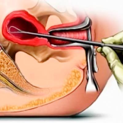 Рубец на матке: кесарево сечение или самопроизвольные роды? Рубец на матке после кесарева сечения