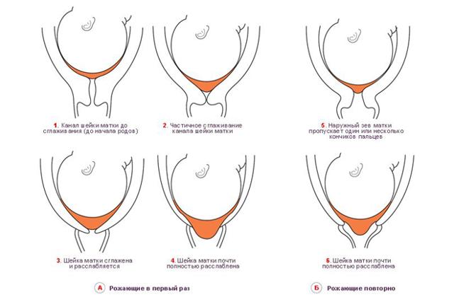 Контроль длины шейки матки, что это такое и как она измеряется?