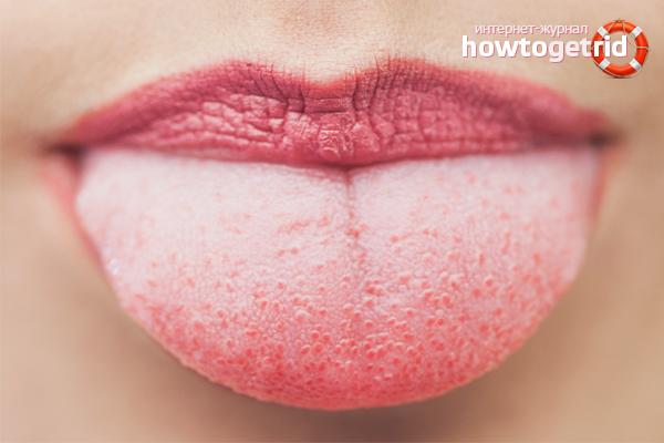 Как счистить налет с языка. Как избавиться от белого и желтого налета на языке в домашних условиях
