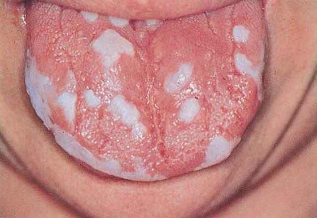 Шершавый язык: причины (что это), с белым налетом, неровные края, зоны вкуса