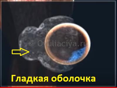 Тошнота при овуляции: почему тошнит во время, через 3 дня, через неделю, через две недели после выхода яйцеклетки