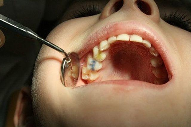 Сколько можно держать мышьяк в зубе взрослому: длительность действия и показания к проведению процедуры, процесс установки и извлечения, советы стоматолога
