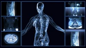 Аксиллярные лимфоузлы: норма, что значит увеличение, причины изменения структуры