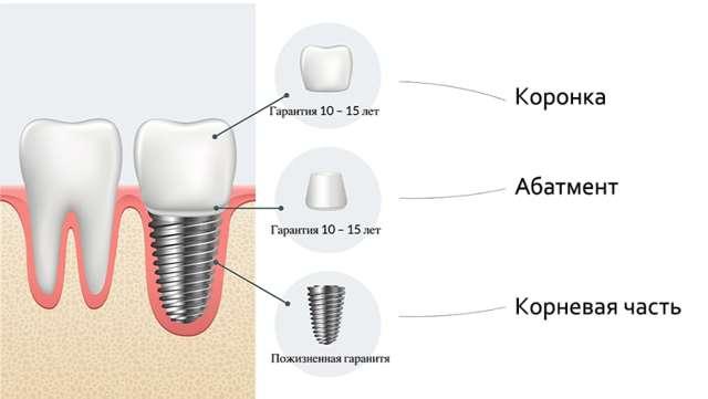 На что распространяется и сколько лет длится гарантия на импланты зубов
